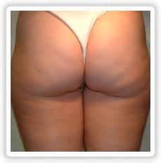 HomeGet Rid of Cellulite Naturally at Home